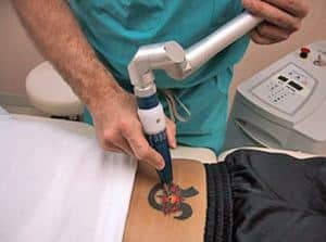 Laser Tattoo Removal - Q- Switched alexandrite laser